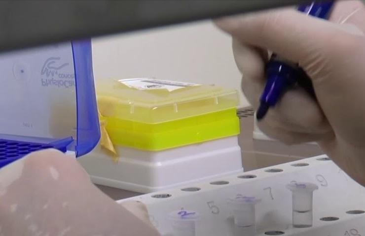 lotteria vaccino covid